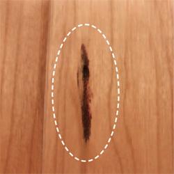 ガムポケット(樹脂痕)